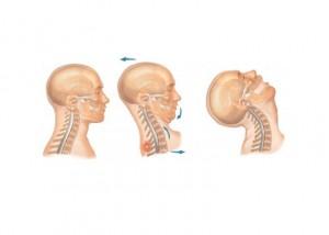 dolor de cervicales
